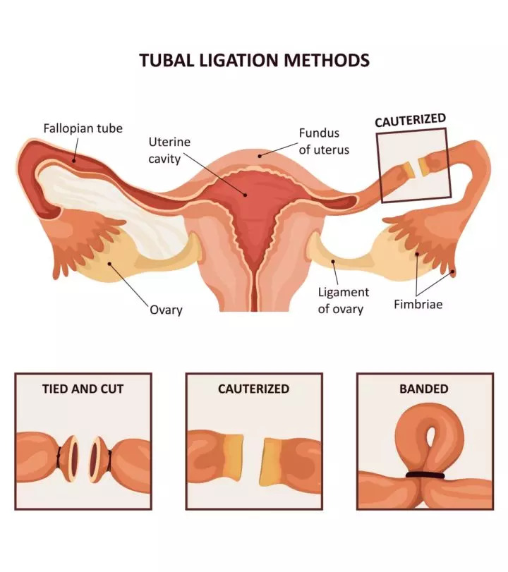 The various methods of tubectomy